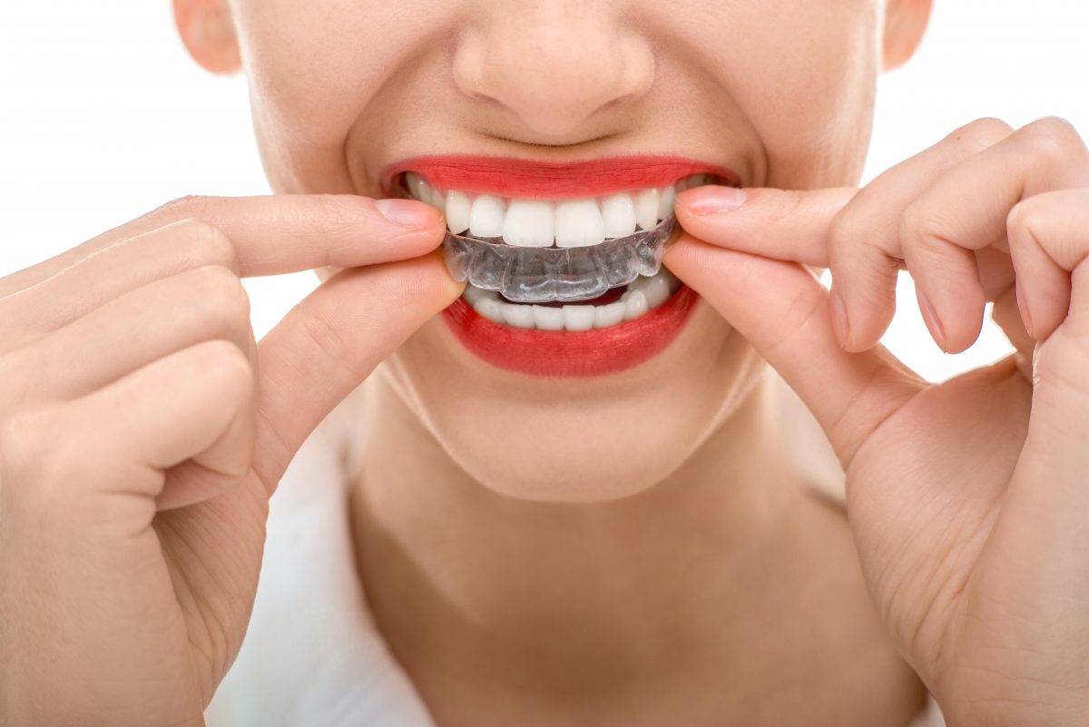 Invisalign, Clear Braces, dentist Los Angeles Dr. Mohammad Khalifeh