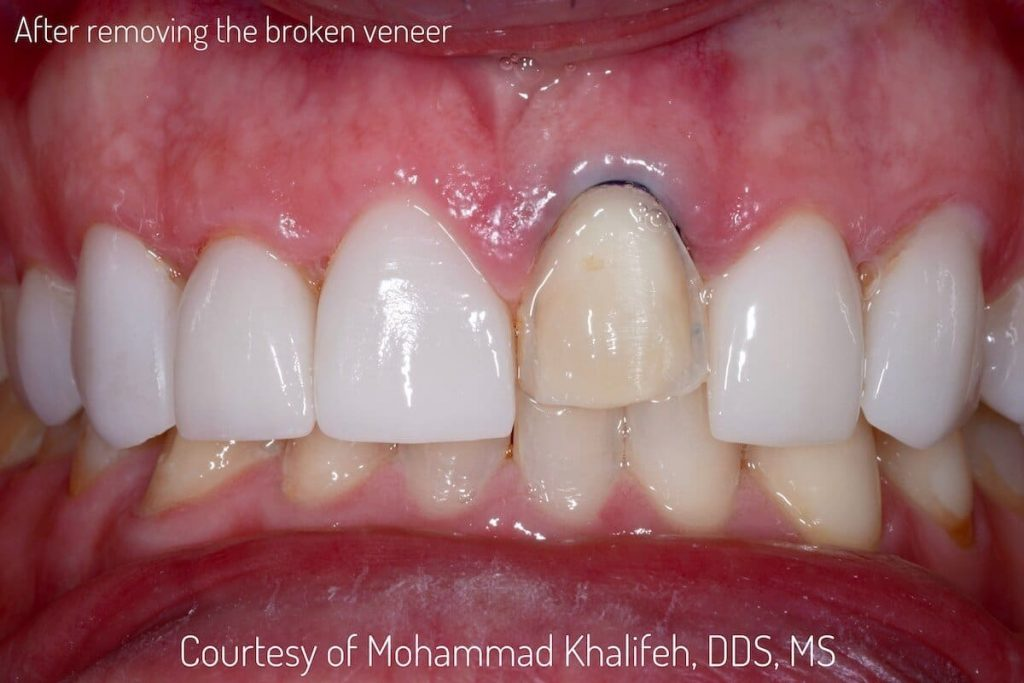 You Cosmetic Dentistry Expert in Los Angeles