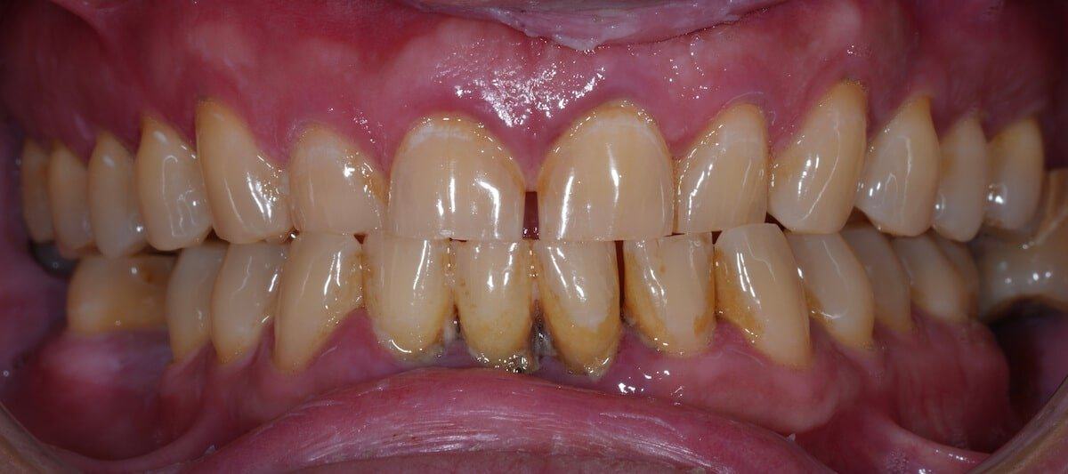 gum disease treatment, Best Los Angeles dentist