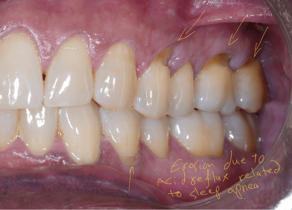 Cervical teeth erosion caused by acid reflux, Dr. Khalifeh, your snoring and sleep apnea specialist